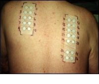 Allergy Testing - Patch Testing